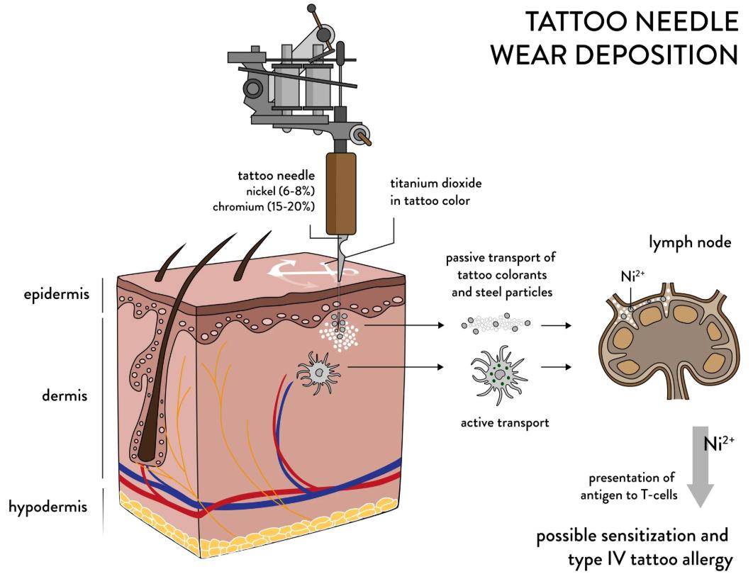 aiguilles-allergies-association-tatouage-partage